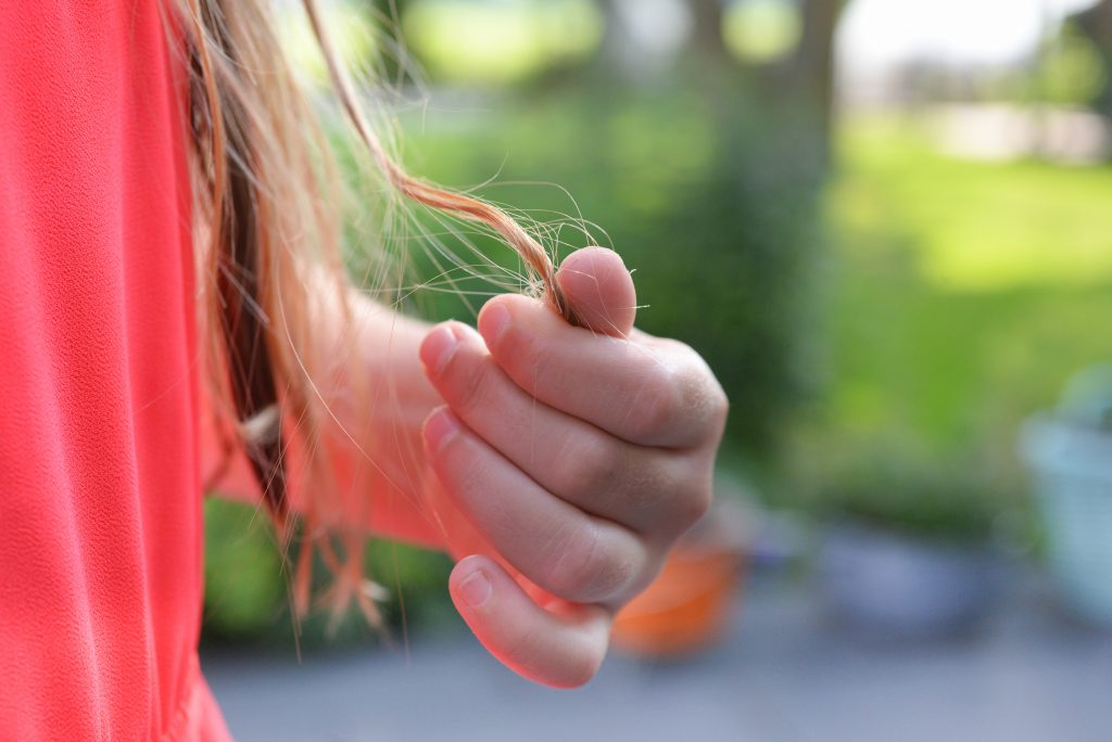 Why Diabetes Causes Hair Loss in Women + 7 Super Effective Tips To Prevent It 2