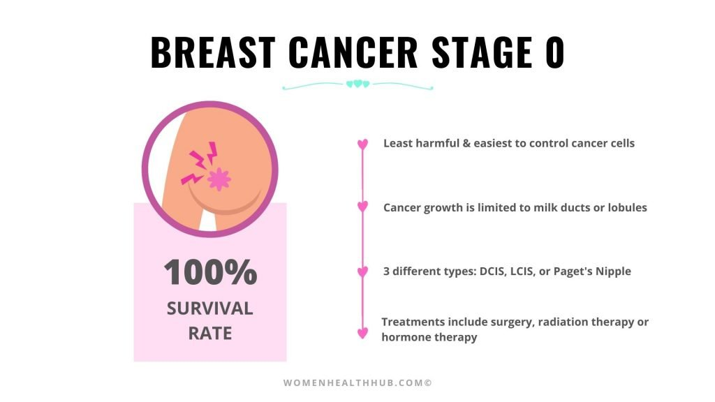 Stage 0 Breast Cancer Treatment & Survival Rate